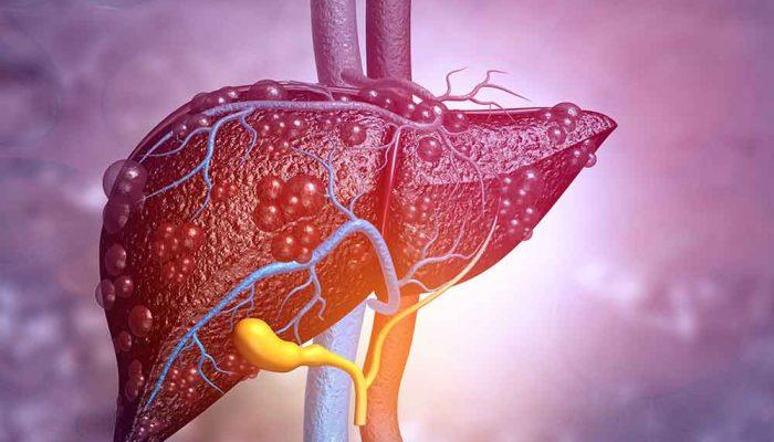 Liver with hepatitis