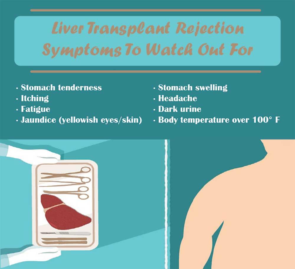 Liver Transplant Rejection: Symptoms