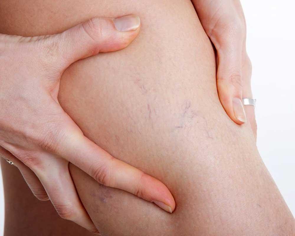 Spider Angioma Cirrhosis On Woman's leg