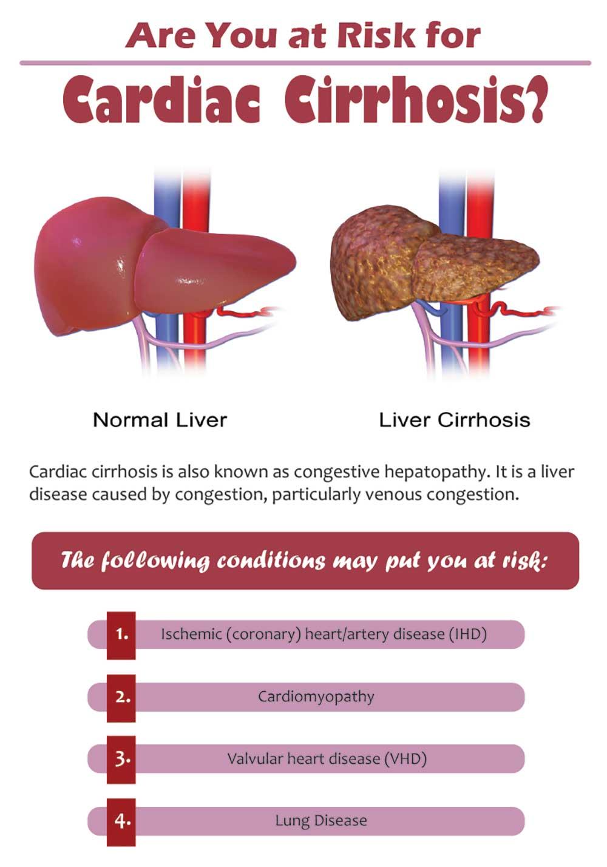 risks of cardiac cirrhosis