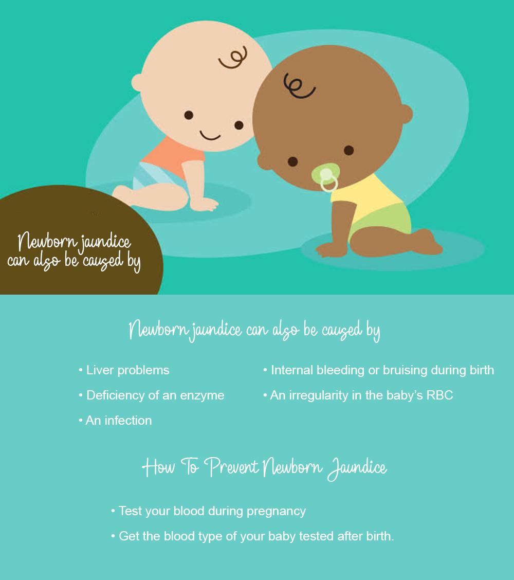 How to prevent jaundice in newborns