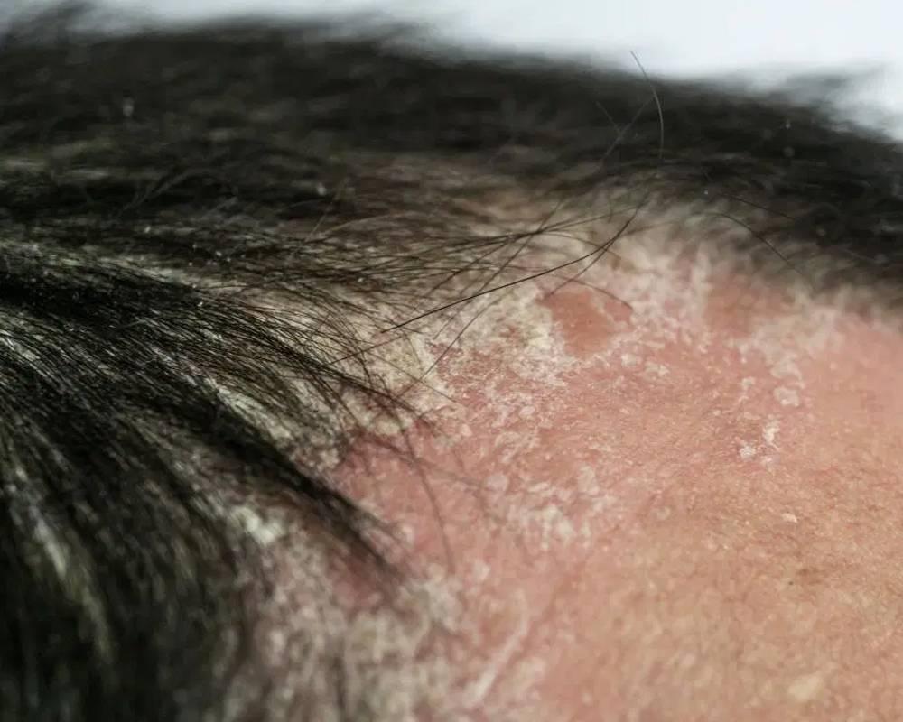 Scalp Cirrhosis