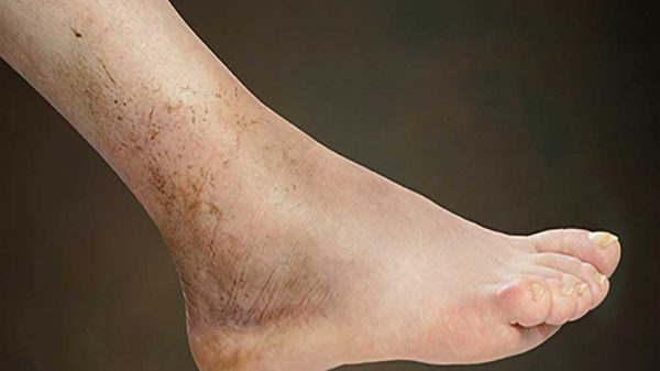 foot with cryptogenic cirrhosis