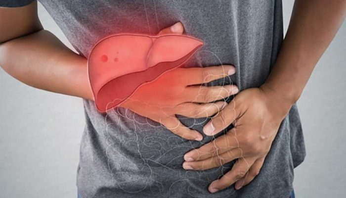 Man in pain due to liver cirrhosis complications
