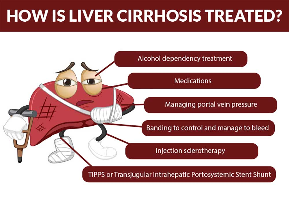 How is Liver Cirrhosis Treated?
