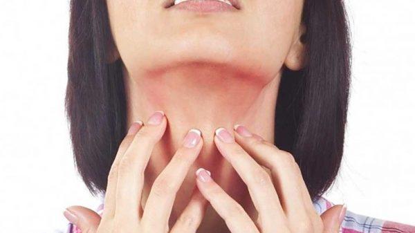 Woman scratching her throat