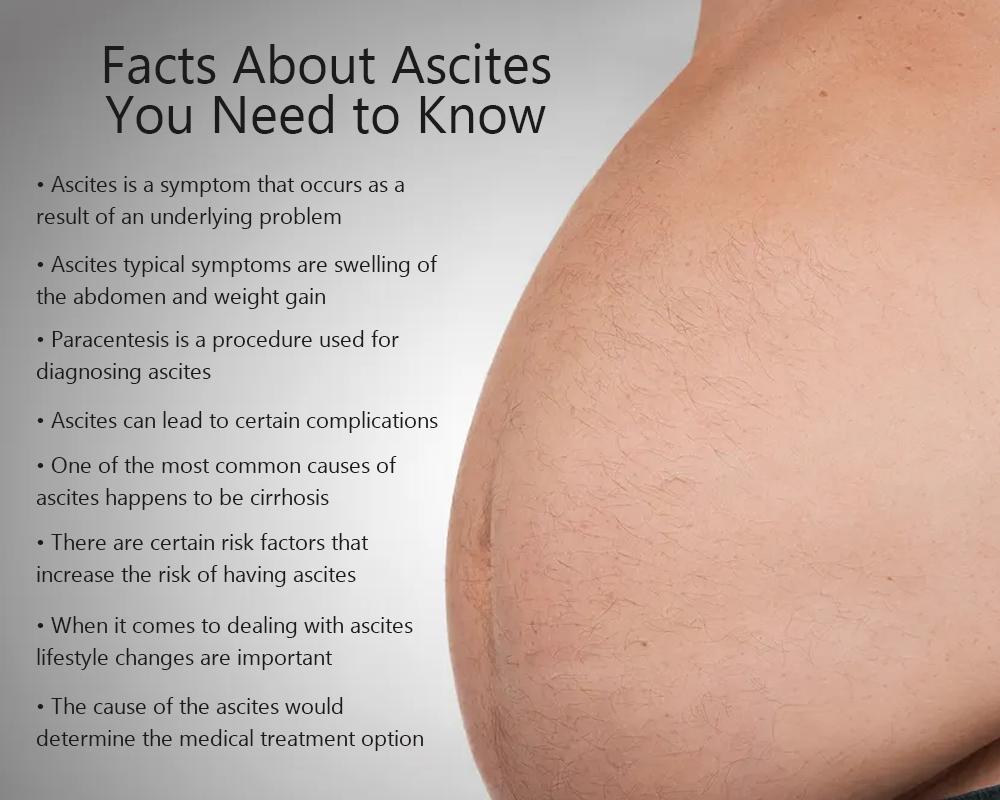 Ascites Medical Terms