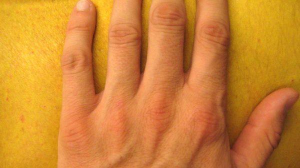 Jaundice hands