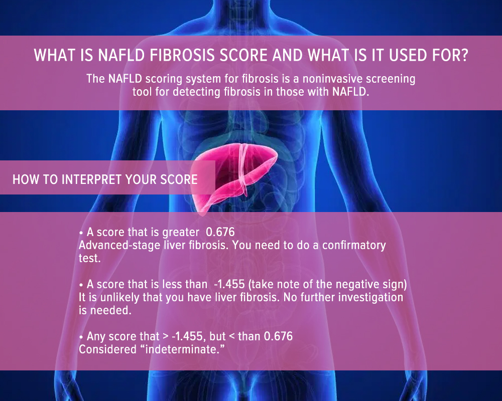 What is NAFLD Fibrosis Score