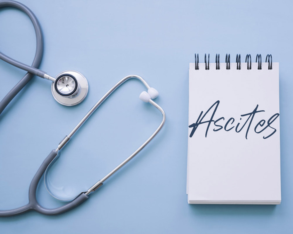 Ascites text on a pad and a stethoscope