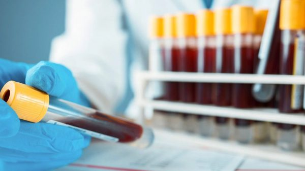 Physician holding blood samples in test tubes