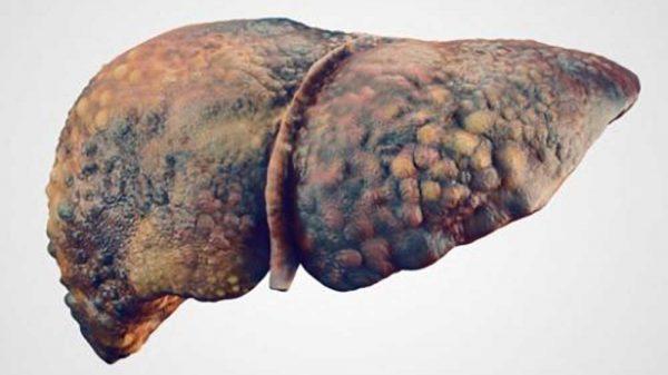 primary biliary cirrhosis vs primary sclerosing cholangitis