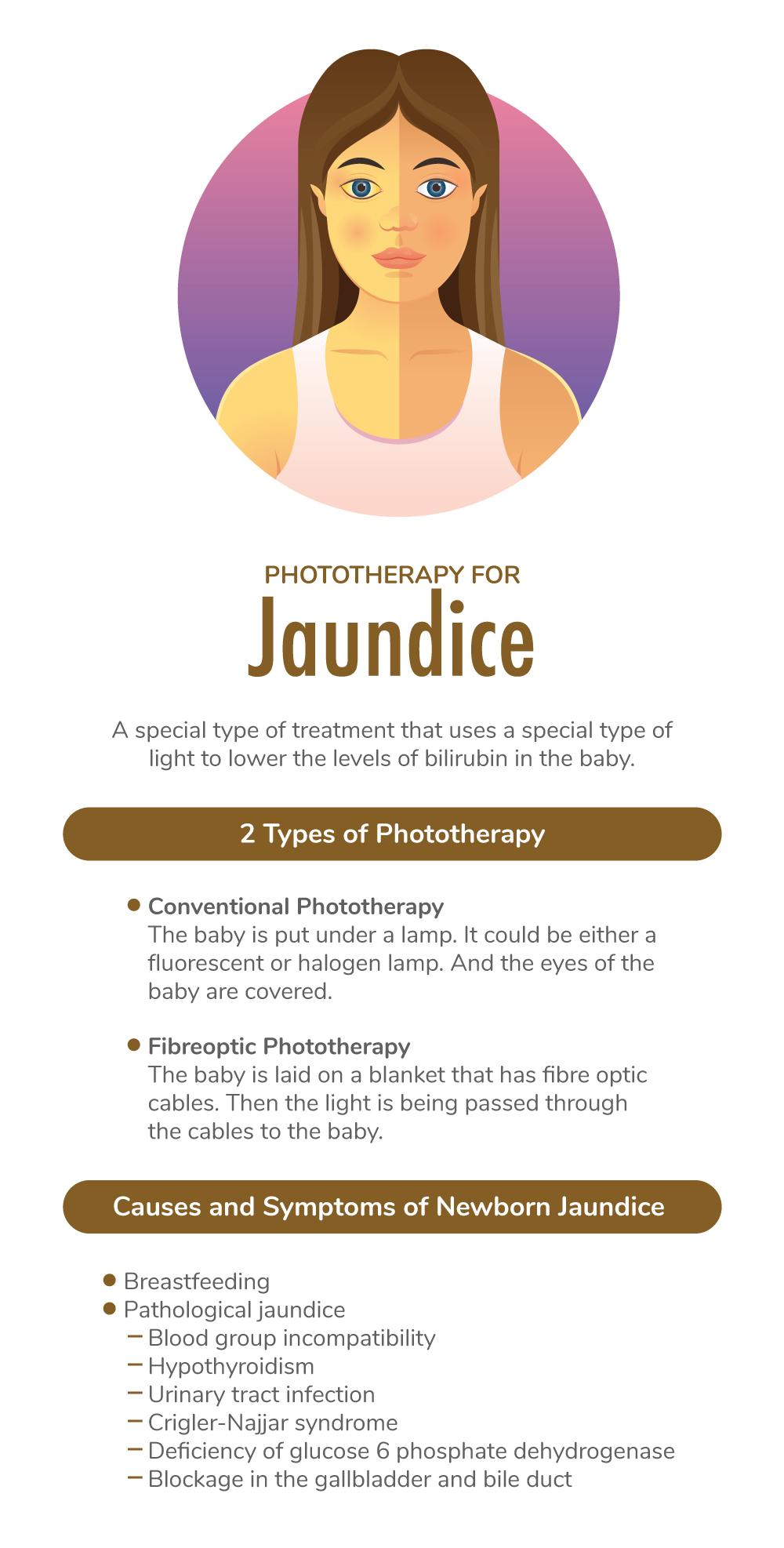 Phototherapy for jaundice