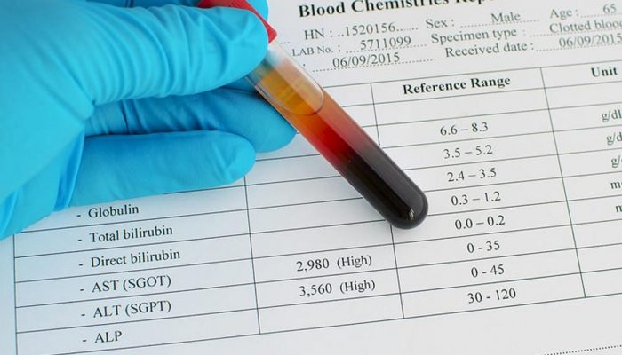 AST level Test Result and a blood sample