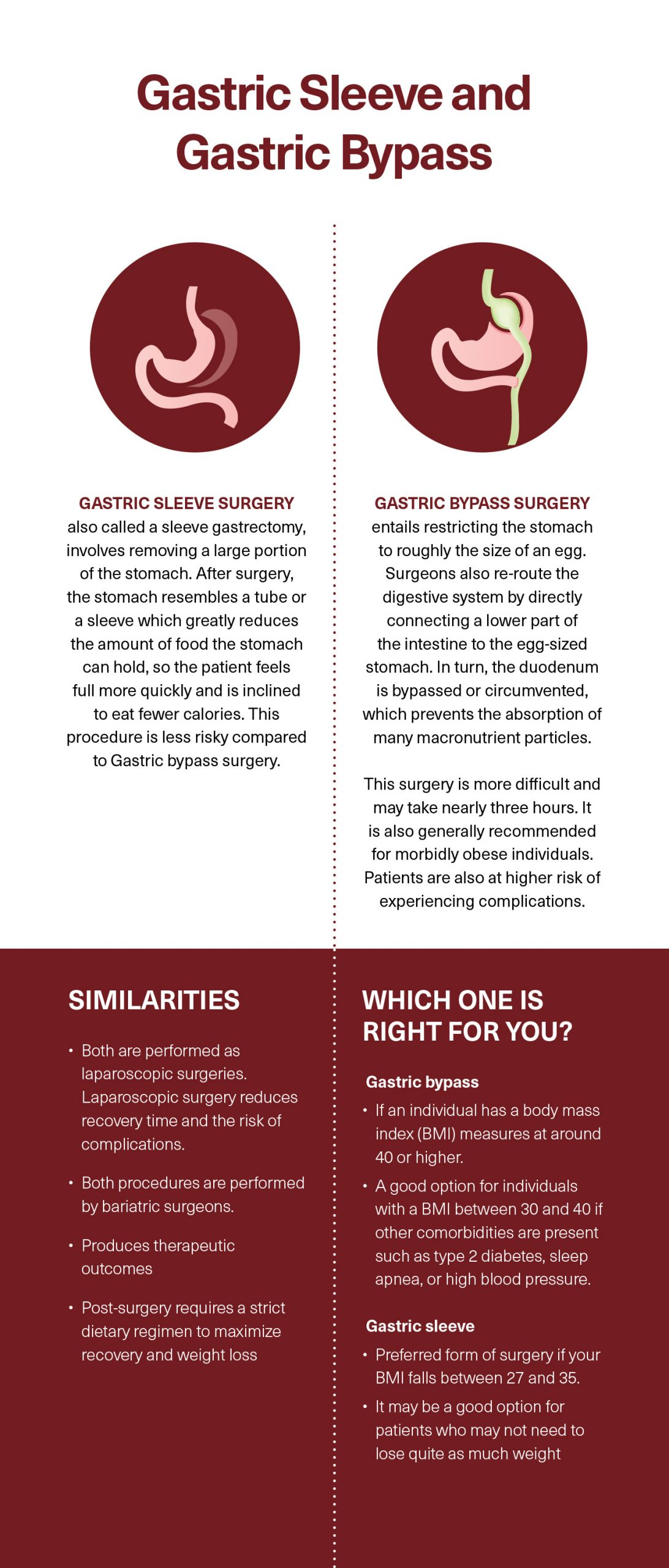Gastric Sleeve and Gastric Bypass