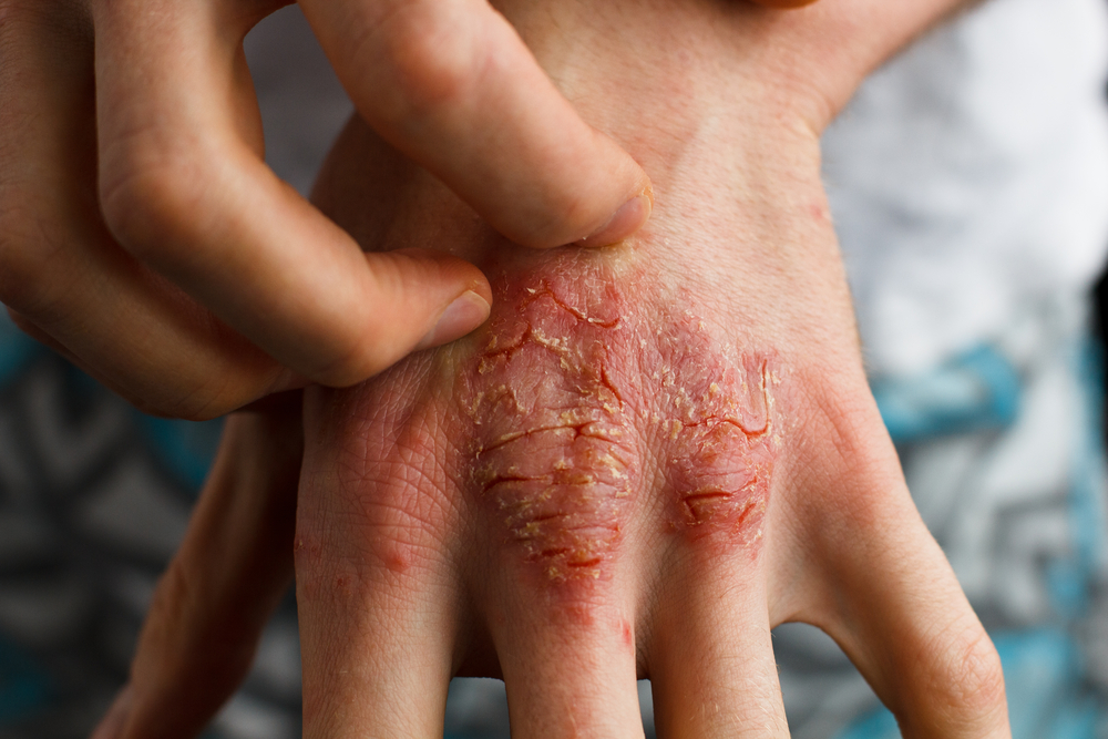 Burning and Itching Psoriasis