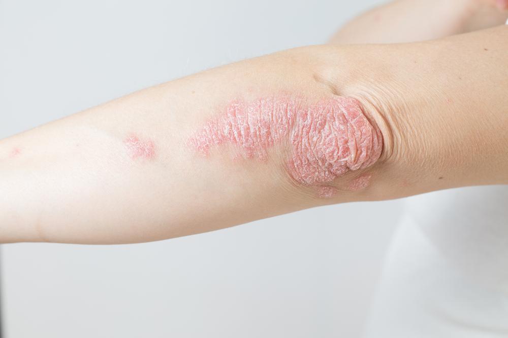 Cracked Skin On Elbow