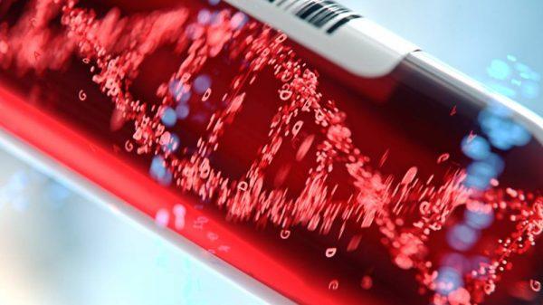 Liver Enzyme Blood Test