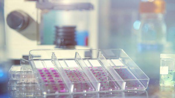 Histopathology of Steatosis and steatohepatitis