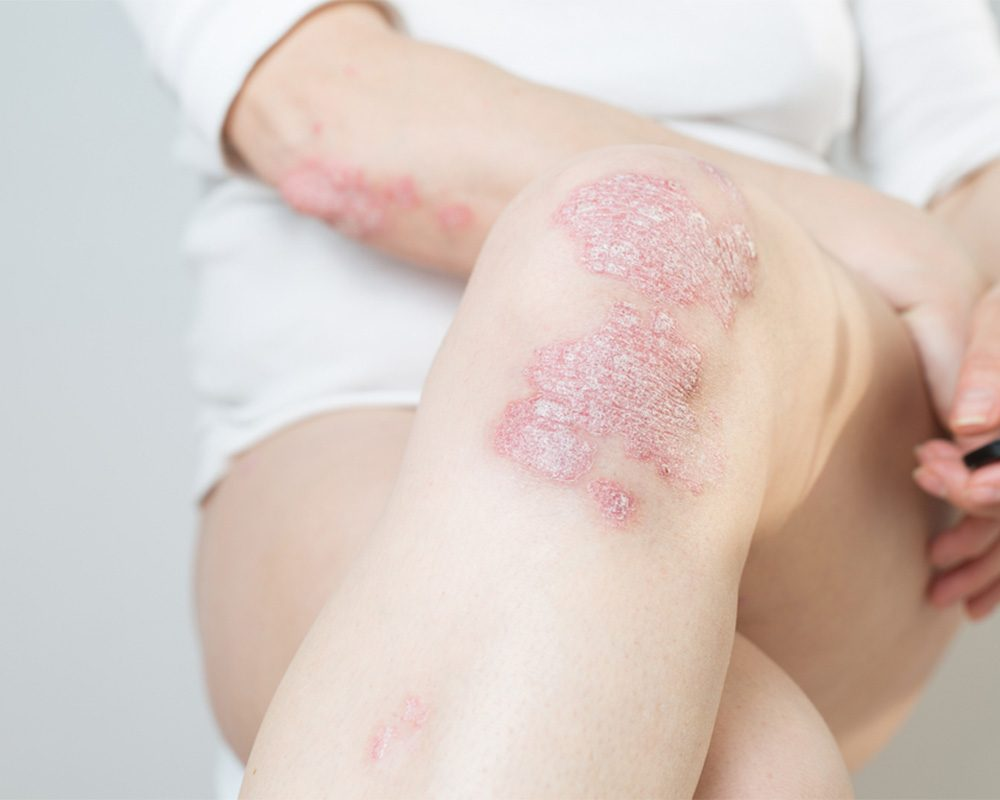 Psoriasis on knee and elbow