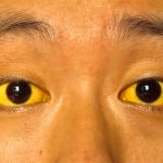 Man with Yellow Eyes