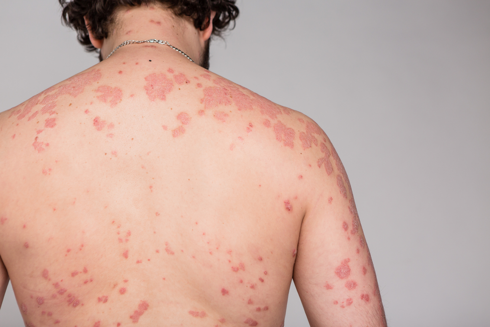 Red and Inflamed Skin Patches