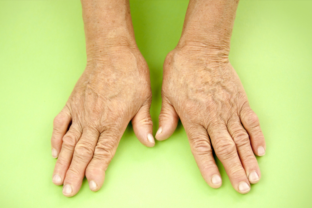 Nail and Joint Psoriasis