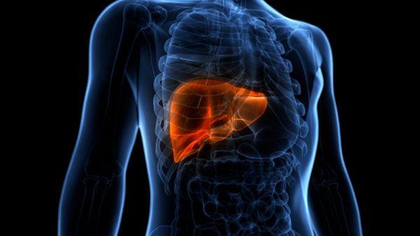Liver lesions