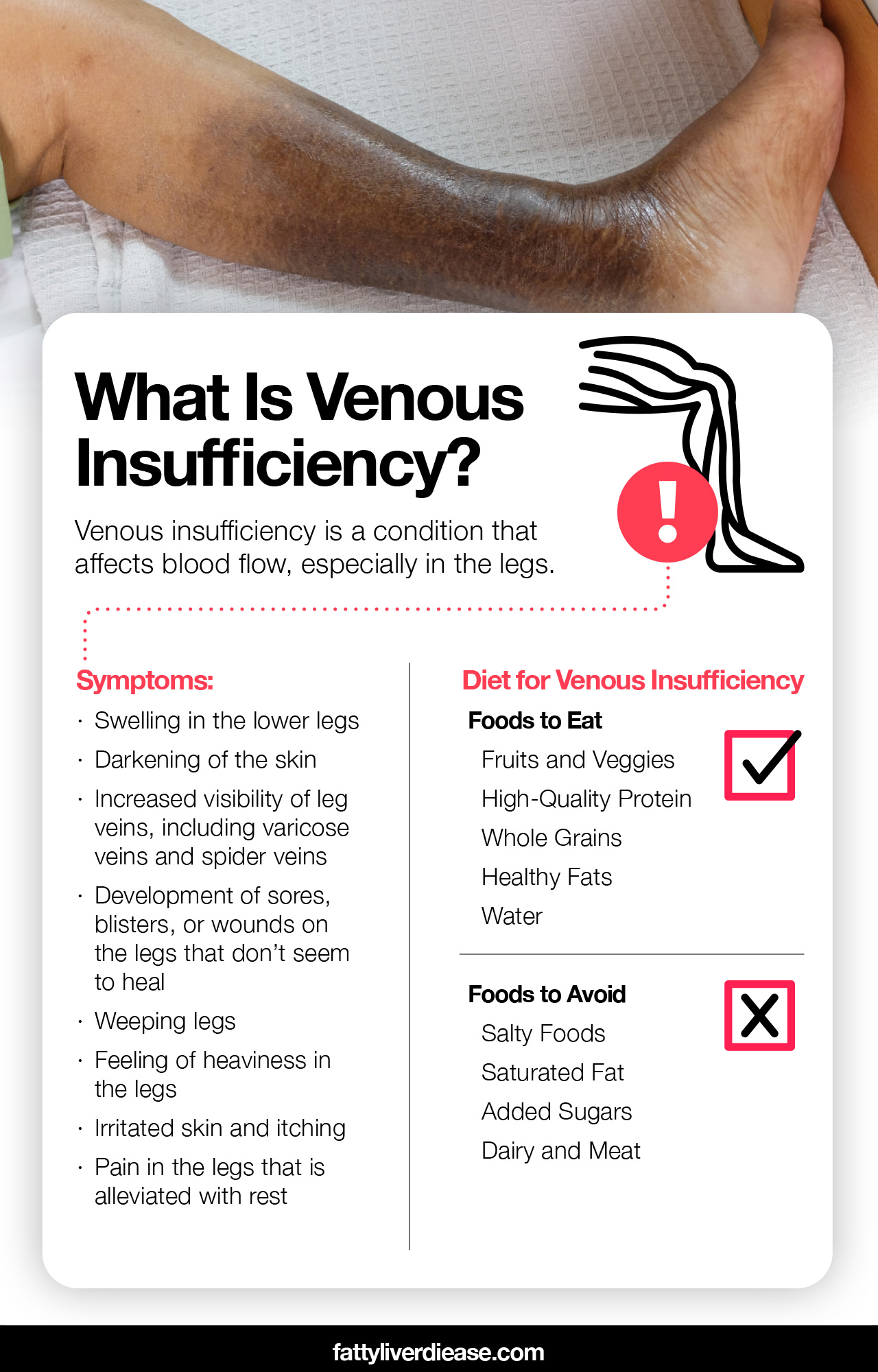 Diet for Venous Insufficiency: How to Manage Venous Insufficiency