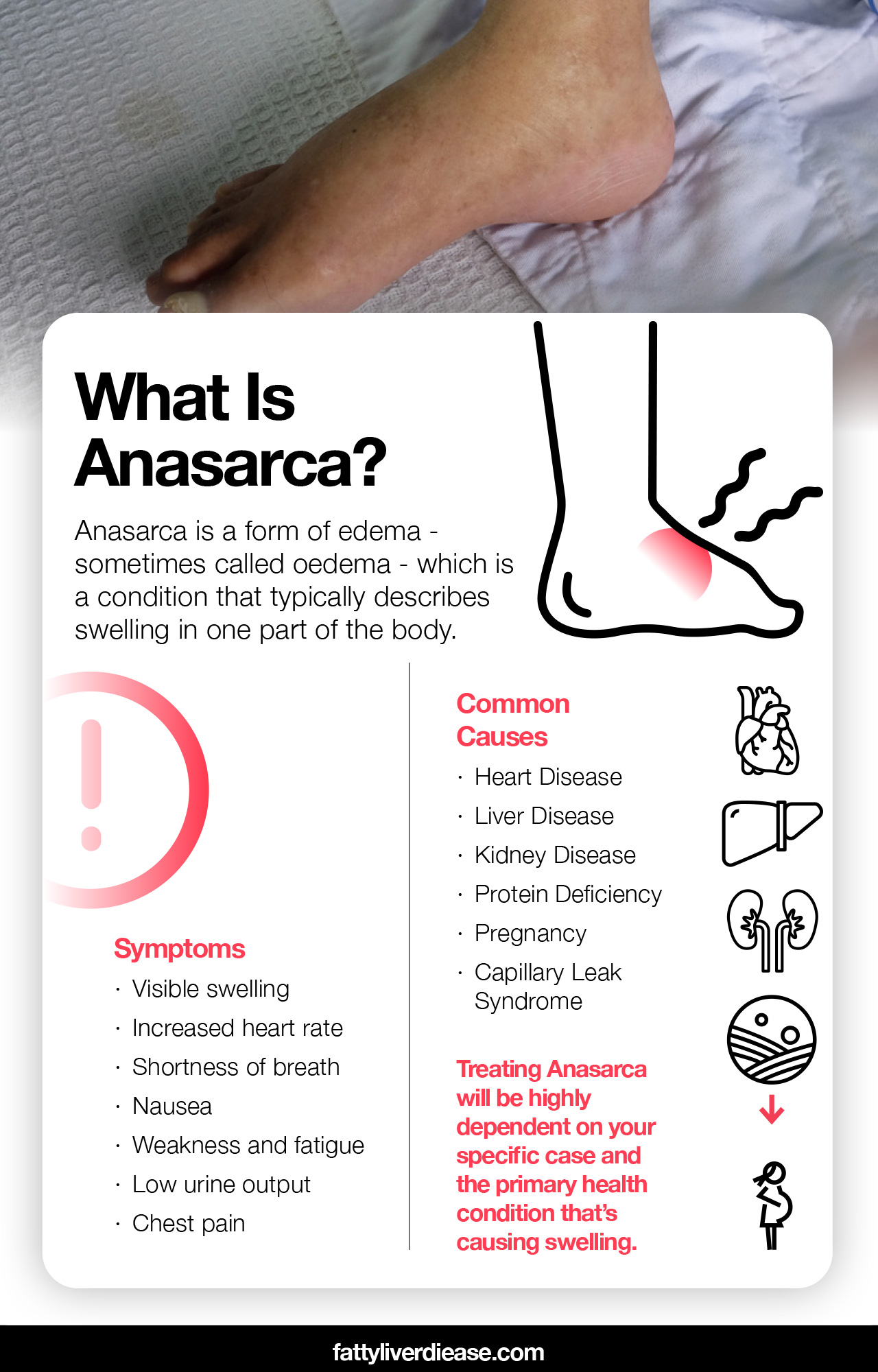 What You Need to Know About Anasarca