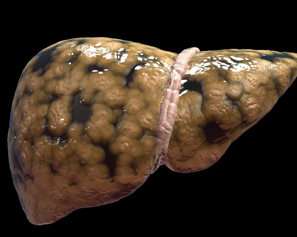 Echogenic Liver