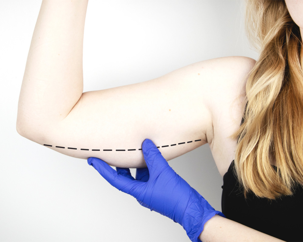 brachioplasty